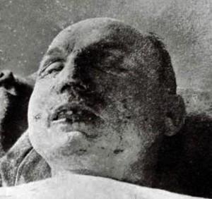 poprava MRŠ_po atentáte_stopa po guľke z pištole_na koreni nosa_4.5.1919